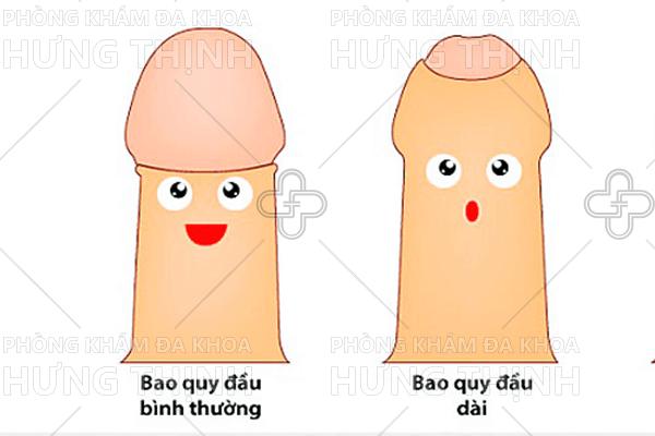 Chữa hẹp bao quy đầu ở đâu uy tín tốt tại Hà Nội?