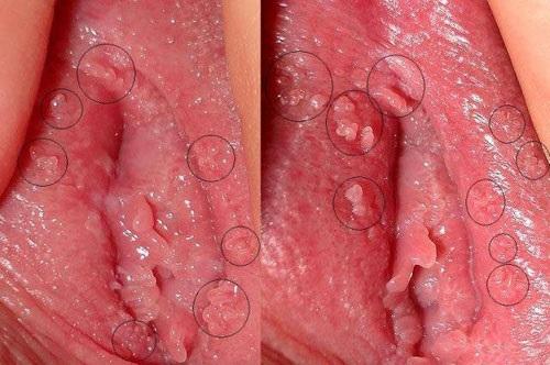 Bệnh mụn cóc sinh dục - nguyên nhân - triệu chứng và cách chữa