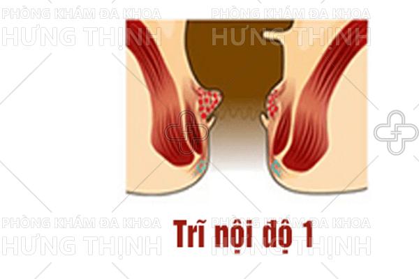 Cách chữa bệnh trĩ nội độ 1 hiệu quả