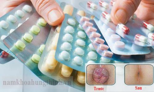 Thuốc chữa bệnh trĩ
